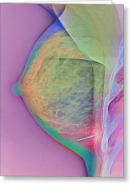 Conditions Greeting Cards - Breast Injury, X-ray Greeting Card by Cnri