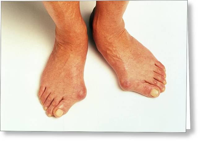 Bunions Greeting Card by Victor De Schwanberg