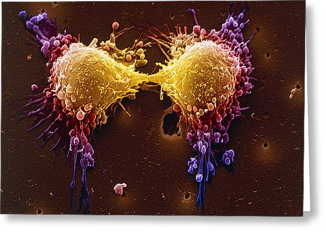 Scanning Electron Micrograph Greeting Cards - Cancer Cell Division, Sem Greeting Card by Steve Gschmeissner