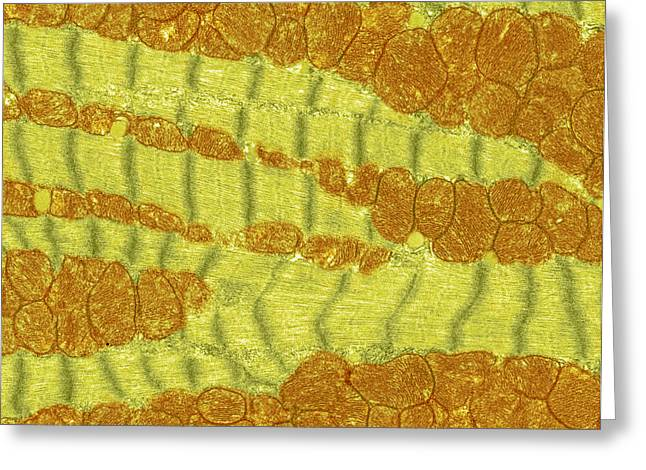 Transverse Tubules Greeting Cards - Cardiac Muscle, Tem Greeting Card by Steve Gschmeissner