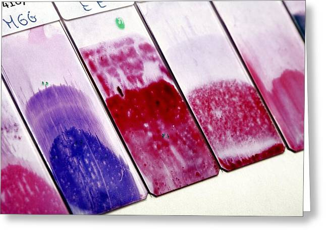 Pap Stain Greeting Cards - Cervical Smear Slides Greeting Card by Mauro Fermariello