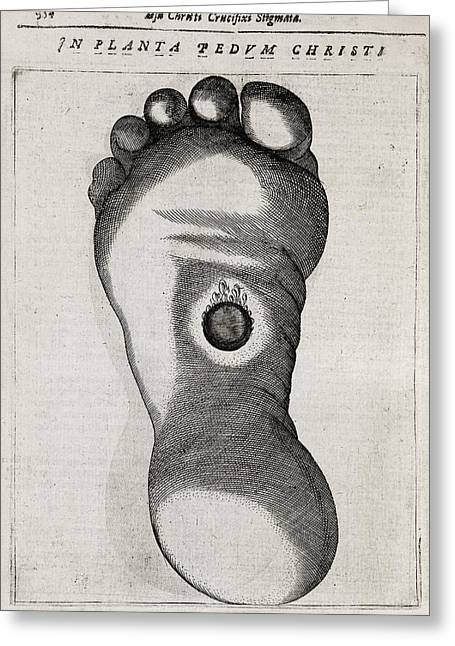 Stigma Greeting Cards - Christs Stigmata, 17th Century Greeting Card by Middle Temple Library
