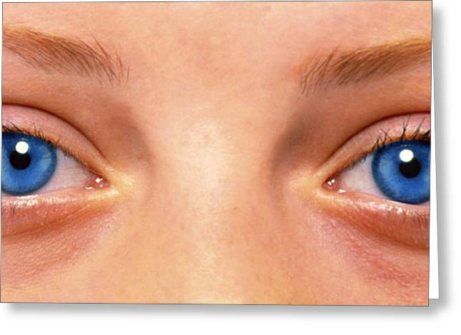 Eyebrow Greeting Cards - Close-up Of Womans Face Showing Her Two Blue Eyes Greeting Card by Damien Lovegrove