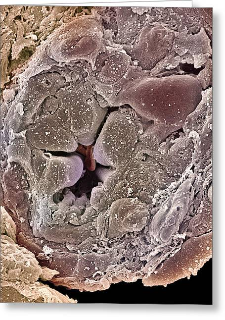 Tubules Greeting Cards - Collecting Duct From A Kidney, Sem Greeting Card by Steve Gschmeissner