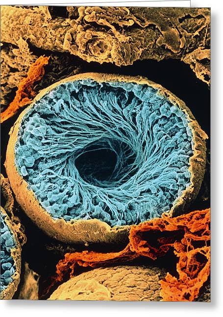 Tubules Greeting Cards - Colour Sem Of Seminiferous Tubule Of The Testis Greeting Card by Cnri