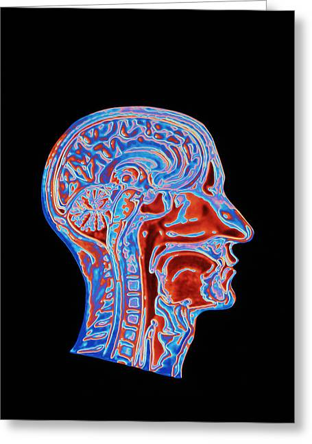 Sca Greeting Cards - Coloured Ct Scan Of A Head Showing A Healthy Brain Greeting Card by Pasieka