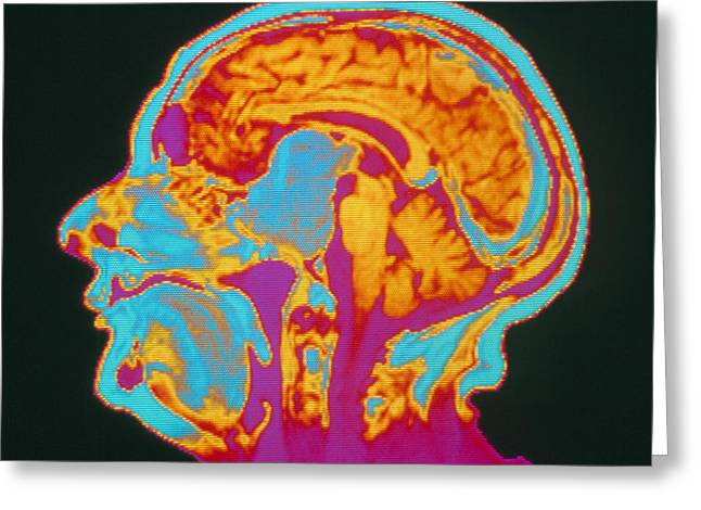 Coloured Mri Brain Scan Of A Pituitary Tumour Greeting Card by Mehau Kulyk