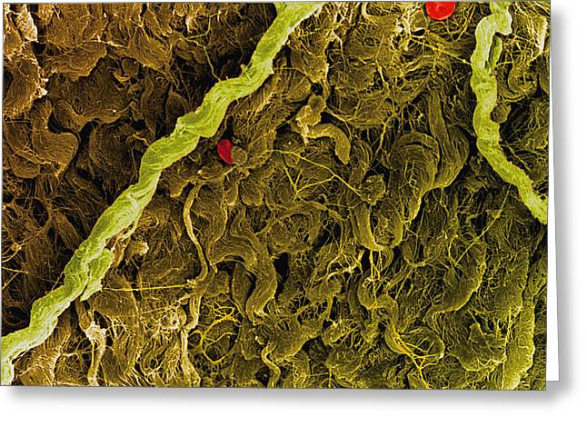 Connective Tissue Greeting Cards - Coloured Sem Of Collagen Connective Tissue Fibres Greeting Card by Steve Gschmeissner