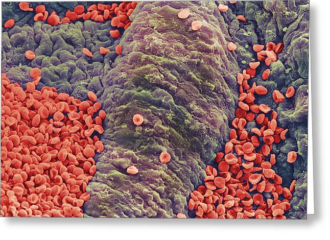 Red Blood Greeting Cards - Coloured Sem Of Red Blood Cells On Vessel Wall Greeting Card by Steve Gschmeissner