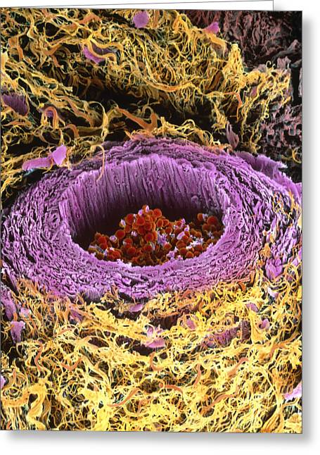 With Red Blood Cell Greeting Cards - Coloured Sem Of Section Through A Human Arteriole Greeting Card by Steve Gschmeissner