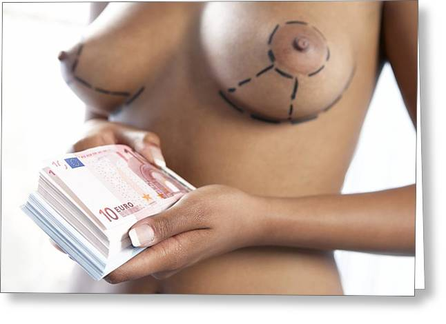 Cosmetic Breast Surgery Greeting Card by Adam Gault