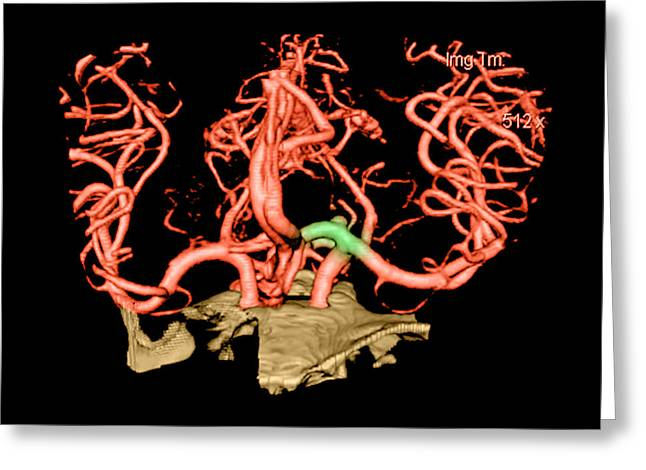 Color Enhanced Greeting Cards - Ct Angiogram Of Aneurysm Greeting Card by Medical Body Scans