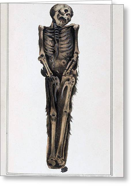 Decay Laws Greeting Cards - Decomposition On Exhumed Bodies, 1831 Greeting Card by Science Source