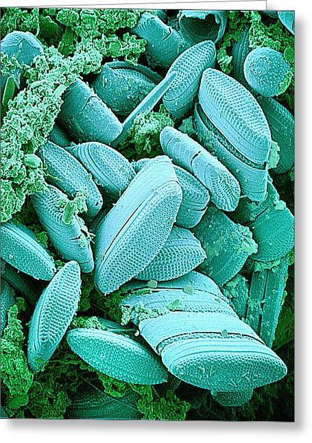 Diatoms, Sem Greeting Card by Susumu Nishinaga