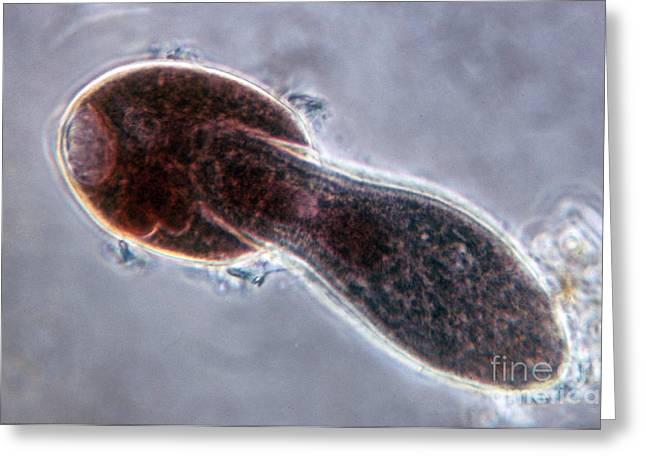 Protozoa Greeting Cards - Didinium Nasutum, Ingesting  Paramecium Greeting Card by Eric V. Grave