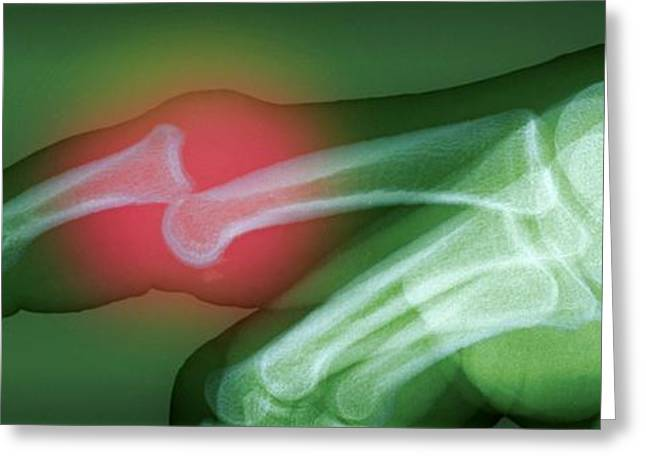 Medical Greeting Cards - Dislocated Finger Greeting Card by Du Cane Medical Imaging Ltd