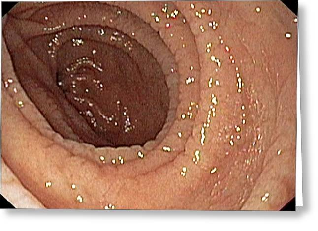 Duodenum Greeting Cards - Duodenum Lining Greeting Card by Gastrolab
