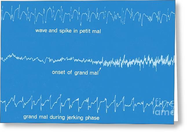 Eeg Greeting Cards - Eeg Of Epileptic Seizures Greeting Card by Science Source