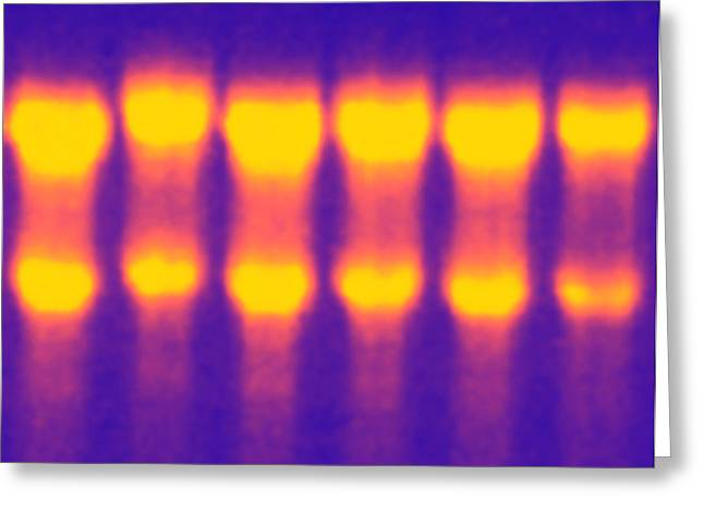 Rna Greeting Cards - Electrophoresis Of Rna Greeting Card by Pasieka