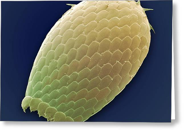 Unicellular Greeting Cards - Euglypha Amoeba Shell, Sem Greeting Card by Steve Gschmeissner