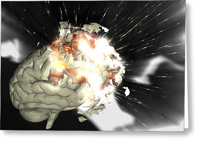 Cognition Greeting Cards - Exploding Brain Greeting Card by Christian Darkin
