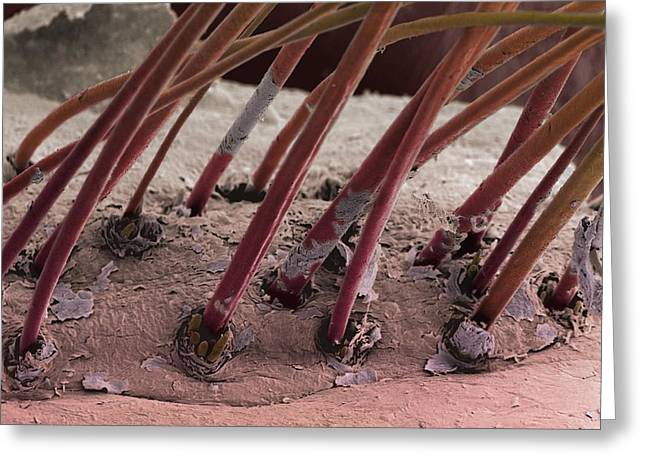 Squamous Greeting Cards - Eyelash Hairs, Sem Greeting Card by Steve Gschmeissner