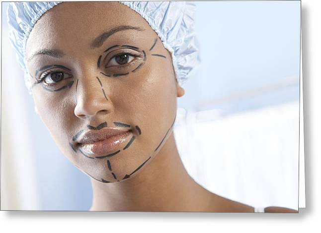 Beauty Mark Greeting Cards - Facelift Surgery Markings Greeting Card by Adam Gault