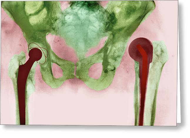 Replacing Greeting Cards - Failed Hip Joint Replacement, X-ray Greeting Card by