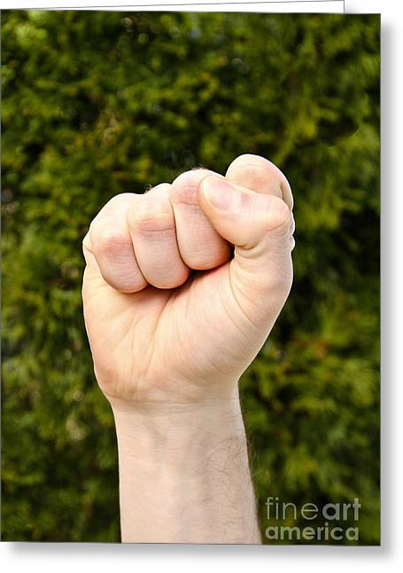 Clenched Fist Greeting Cards - Fist Greeting Card by Photo Researchers, Inc.
