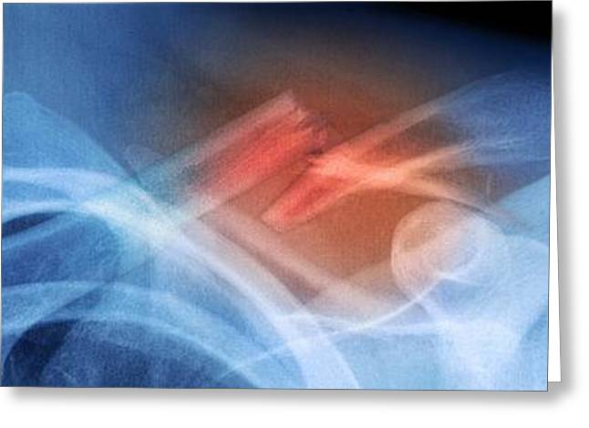 Fractured Collar Bone, X-ray Greeting Card by Du Cane Medical Imaging Ltd