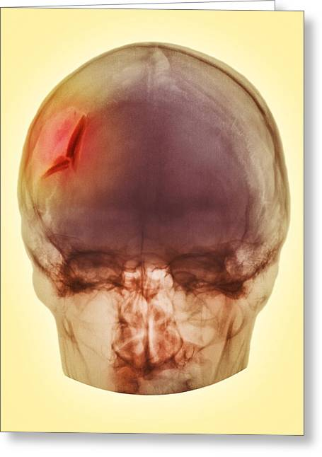 Hurting Head Greeting Cards - Fractured Skull, X-ray Greeting Card by Pht