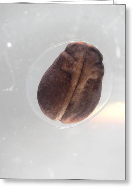 Embryo Greeting Cards - Frog Egg Development Greeting Card by Dr Keith Wheeler