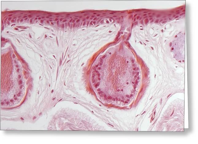 Secretory Greeting Cards - Frog Skin Glands, Light Micrograph Greeting Card by Robert Markus