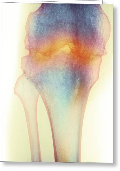 Stiffness Greeting Cards - Fused Knee Joint, X-ray Greeting Card by