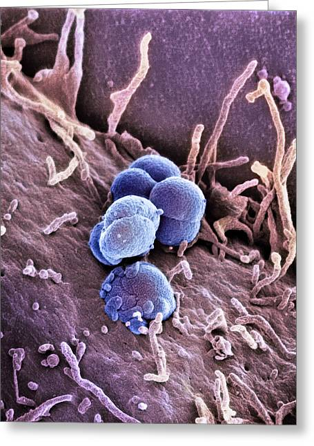 Microbiology Greeting Cards - Gonorrhoea Bacteria, Sem Greeting Card by