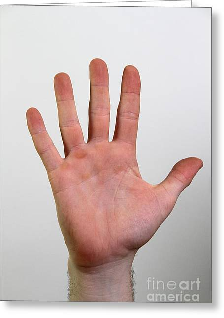 Asl Greeting Cards - Hand Signing Number Five Greeting Card by Photo Researchers, Inc.