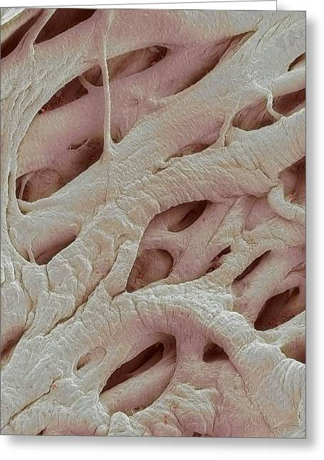 Scanning Electron Microscope Greeting Cards - Heart Strings, Sem Greeting Card by Steve Gschmeissner