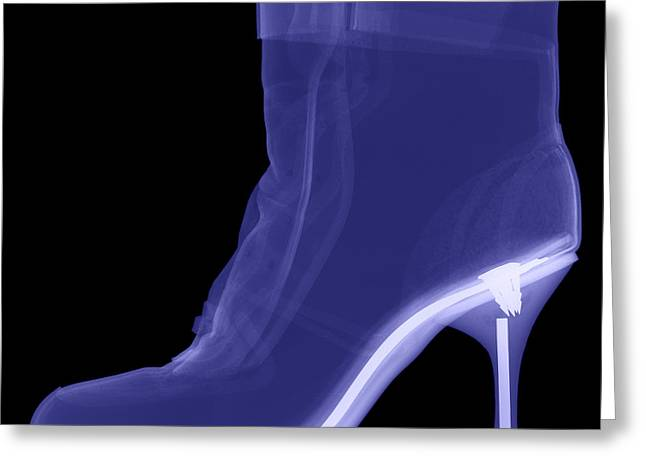 Radiograph Greeting Cards - High Heel Boot X-ray Greeting Card by Ted Kinsman