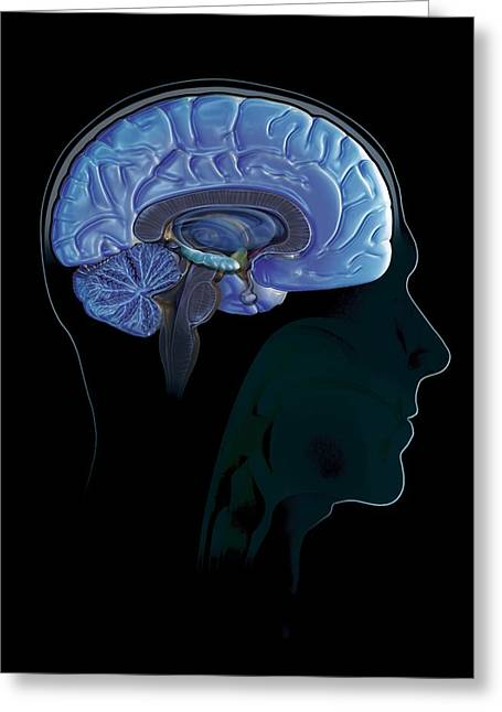 Psychological Background Greeting Cards - Human Brain, Artwork Greeting Card by Claus Lunau