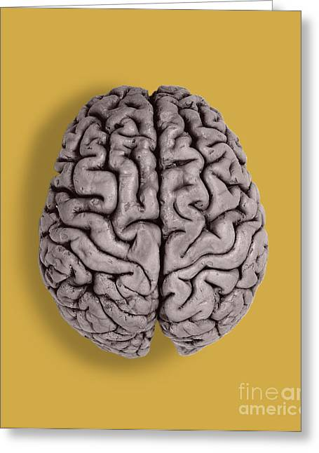 Left Hemisphere Greeting Cards - Human Brain Greeting Card by Omikron