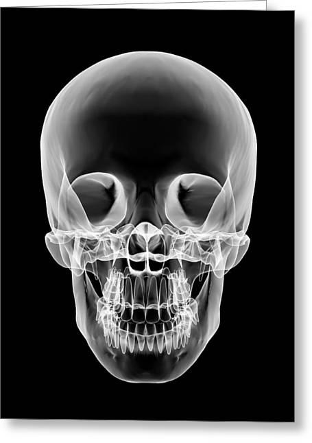 Osteology Greeting Cards - Human Skull, X-ray Artwork Greeting Card by Pasieka