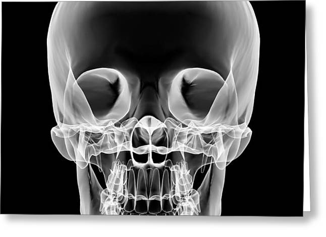 Human Skull, X-ray Artwork Greeting Card by Pasieka
