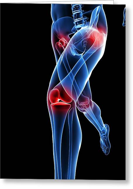 Joint Pain, Conceptual Artwork Greeting Card by Sciepro