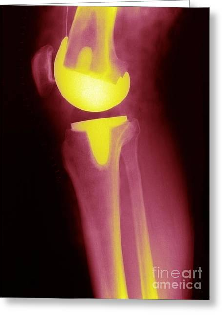 Knee Joint Greeting Cards - Knee Replacement X-ray Greeting Card by Ted Kinsman