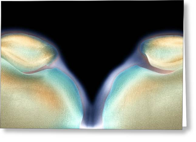 Pairs Greeting Cards - Kneecaps, X-ray Greeting Card by