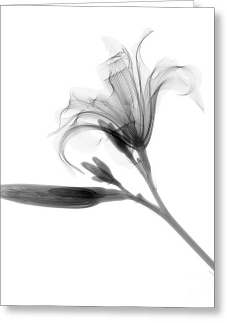 Radiograph Greeting Cards - Lilly Greeting Card by Ted Kinsman