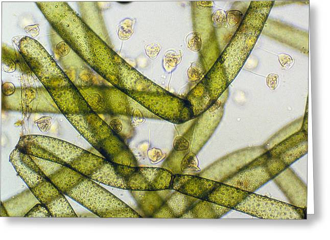 Lm Of Vorticella Ciliates On A Green Alga Greeting Card by Power And Syred