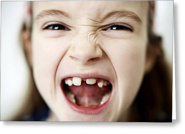 Missing Teeth Greeting Cards - Loss Of Milk Teeth Greeting Card by Ian Boddy
