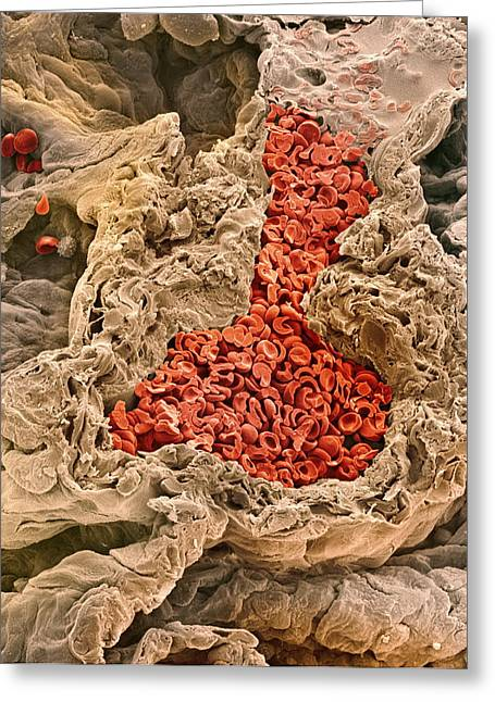 Erythrocytes Greeting Cards - Lung Blood Vessel, Sem Greeting Card by Steve Gschmeissner