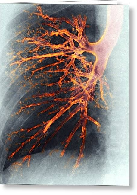 Airways Greeting Cards - Lung, X-ray Greeting Card by Cnri